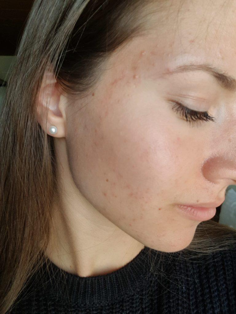 Östrogen-Detox Haut